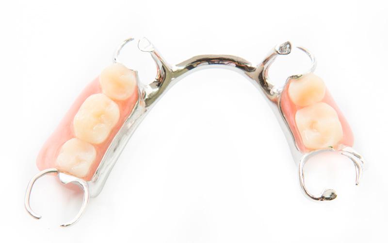 Full Amp Partial Dentures Overdentures Reline Amp Repair